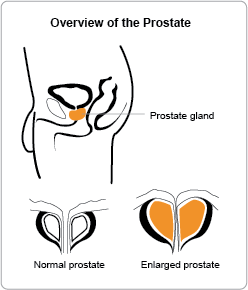 Prostate overview